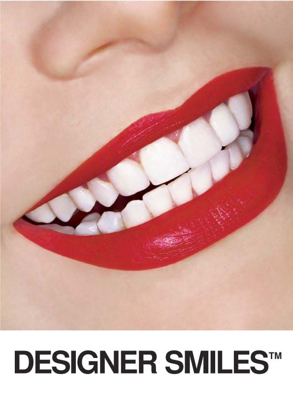 Designer Smiles Logo