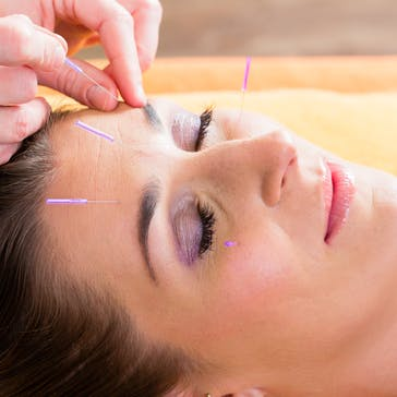Glenmore Park Physiotherapy - Acupuncture