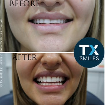 TX Smiles